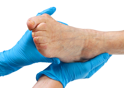 Why Foot Care Training? – Professional Education